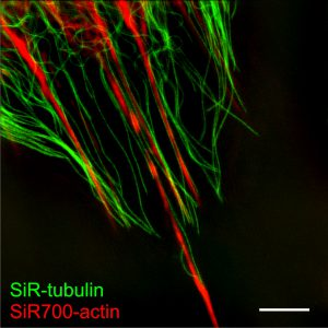 Fig 3: Fibroblasts with SiR-Tubulin & SiR700-Actin. Living human fibroblasts were stained with 1 mM SiR700-Actin (red) and 1 mM SiR-Tubulin (green) for 1h at 37°C, washed 2 times with fresh medium and imaged by SIM microscopy.