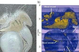 الخلايا السرطانية تقنية