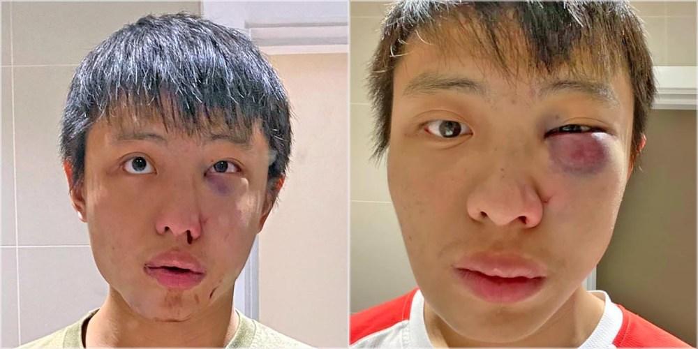 Jonathan Mok COVID racism victim