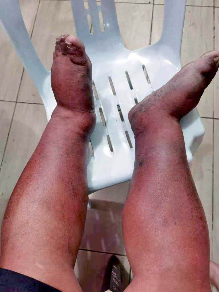 Fact Check : Swollen Feet From COVID-19 Vaccine?