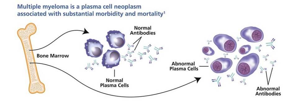 Multiple myeloma plasma cell neoplasm