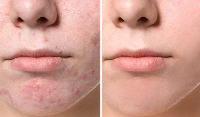 6 Reasons Why Acne Forms and Strives