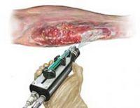 skin-gun.jpg