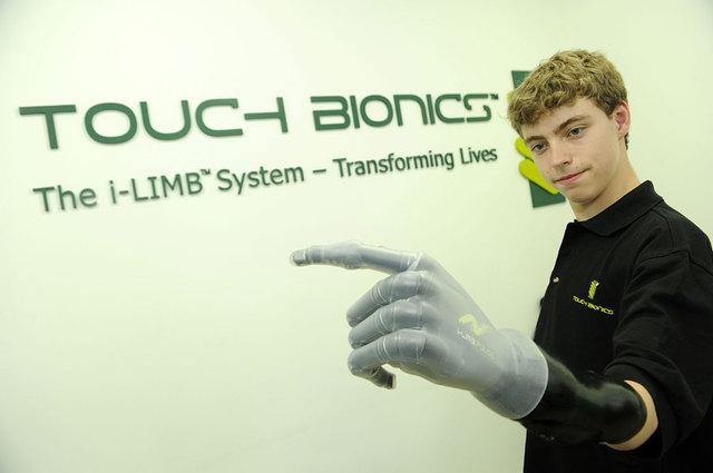 bionic-hand-boy.jpg