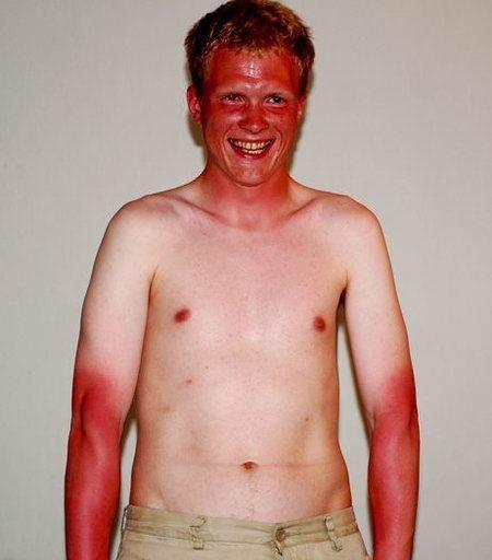 sunburn-sucks.jpg
