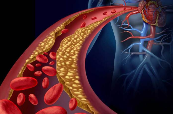 Research Team Uses 3-D Printing to Engineer Model Blood Vessels