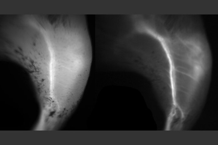 A comparison of blood vessels imaged with short-wave fluorescence imaging (right) and near-infrared fluorescence imaging (left). Both images rely on a fluorescent dye called ICG, but the vessels can be seen more clearly with short-wave fluorescence imaging.