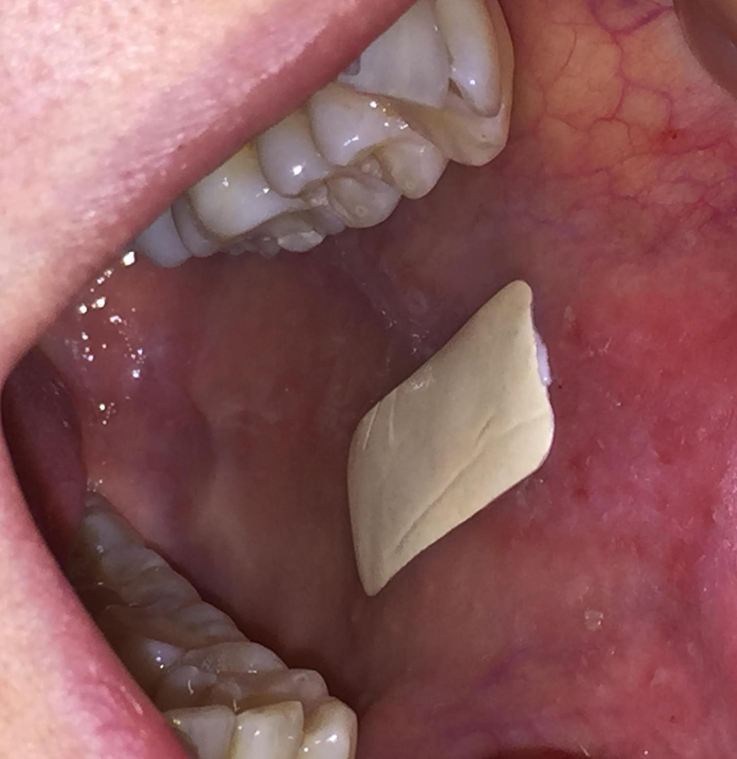 Plaster which sticks inside the mouth will revolutionise treatment of oral conditions