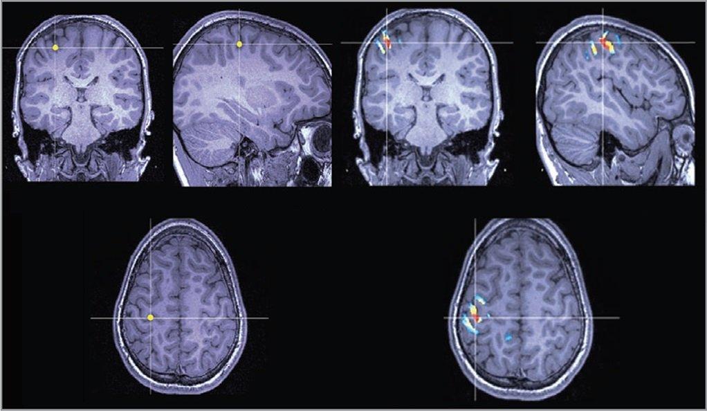 New technique fine-tunes treatment for severe epilepsy cases