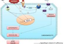 How Vitamin D deficiency can cause heart failure?