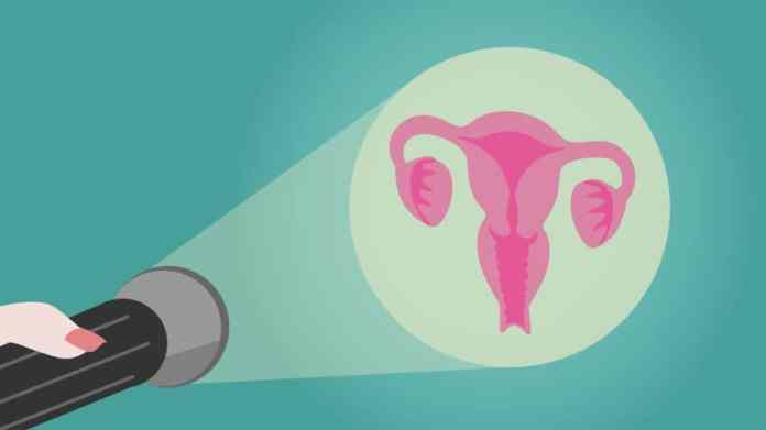 Why some women are more prone to develop cervical cancer?