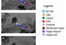 Sub-field of the hippocampus in three young adults: (a) healthy control; (b) young male with deletion syndrome but no psychotic symptoms; and (c) young male with deletion syndrome and psychotic symptoms. In the third subject, atrophy of the head of the hippocampus is evident.© UNIGE
