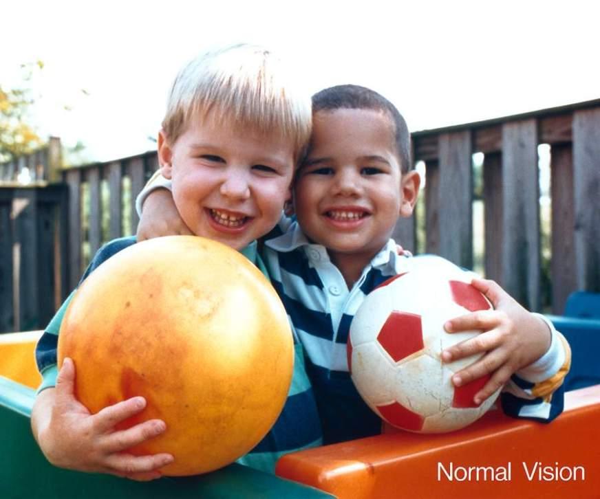 Dégénérescence maculaire liée à l'âge - Différents types