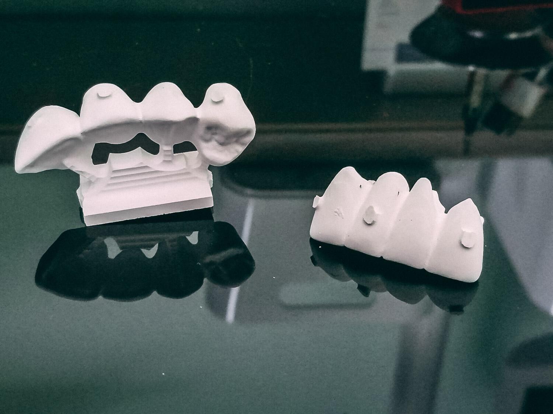 Protesi 3 - Laboratorio Odontotecnico TechnoDental