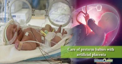Care of preterm babies with artificial placenta