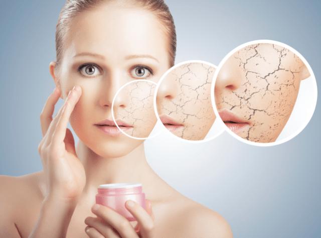 dry skin in winters