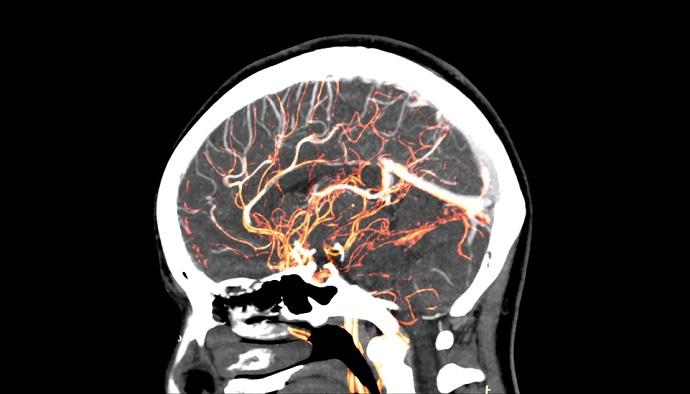 AI revolutionizing stroke care