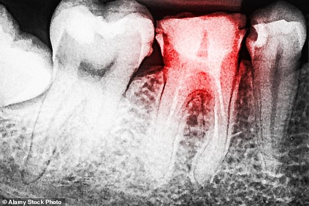 Tooth Fairy is the UK's first ever video calling app which offers webcam consultations with dentists. Stock photo showing tooth decay