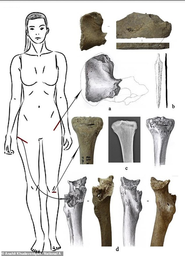 Archaeologists also discovered injuries to her thigh likely caused by a long-range weapon