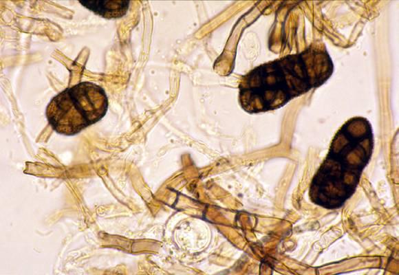 Stemphylium vesicarium