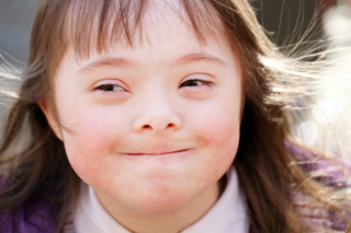 Down Syndrome Babies Aborted