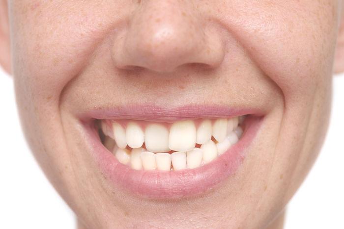 Crooked Teeth Dream | Dream Interpretation & Meanings