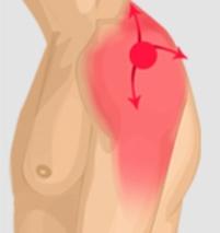 tendinite epaule