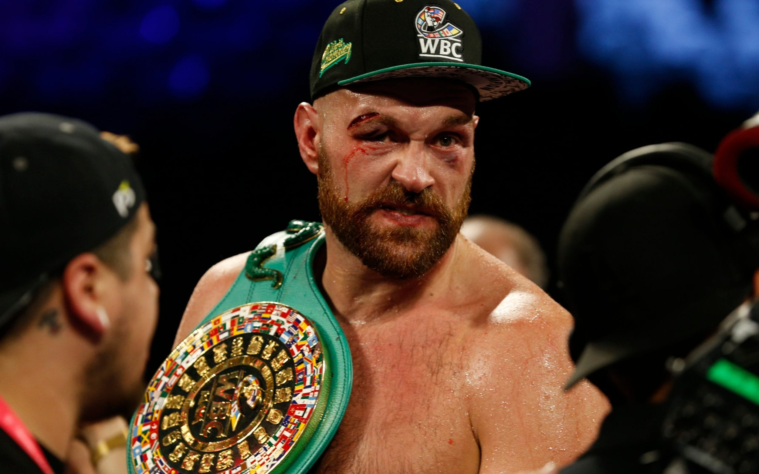 Lethargic Tyson Fury Lacked Power And Timing In Sin City