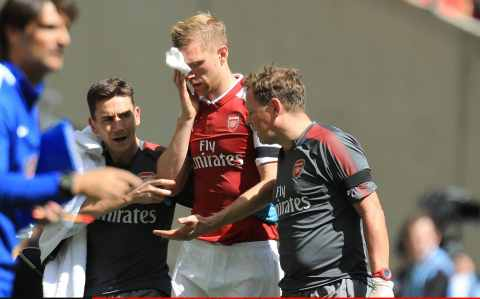 Per Mertesacker of Arsenal is taken off with a bleeding head injury