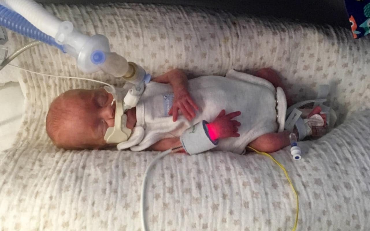 'Miracle baby' born at just 22 weeks - and weighed only ...