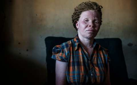 Elizabeth Petro, 30, says she faced threats and an attempt of kidnapping for being an albino