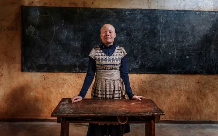 Bertha Ngalande, an albino teacher, lives in fear after a possible kidnapping attempt CREDIT: EDUARDO SOTERAS JALIL