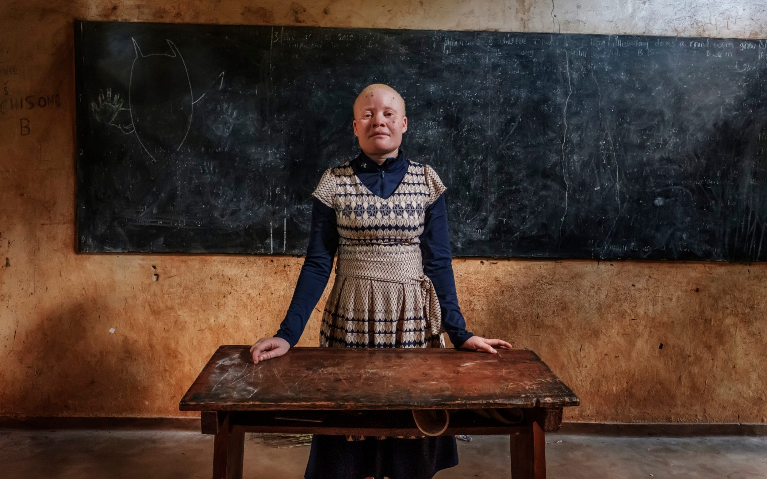 Bertha Ngalande, an albino teacher, lives in fear after a possible kidnapping attempt