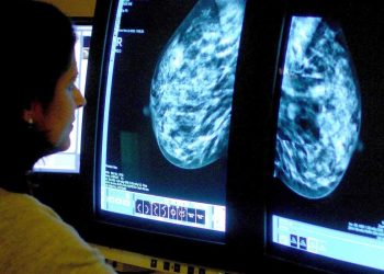 AI can diagnose breast cancer more accurately than a doctor can