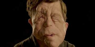 One in three people with facial disfigurement have suffered abuse in the road, survey reveals