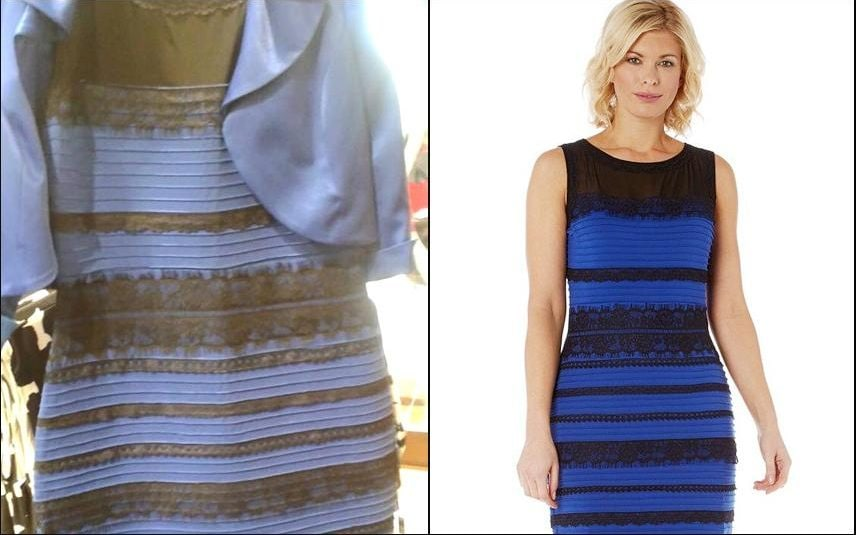 Dressgate If You Saw THAT Dress As White Your Brain Was