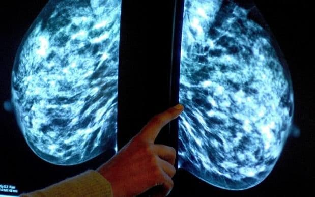 A breast scan
