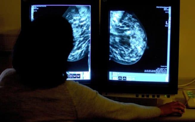 consultant studying a mammogram showing a womans breast in order check for breast cancer, as experienced radiologists can spot subtle signs of breast cancer in mammogram images in just half a second, a study has found