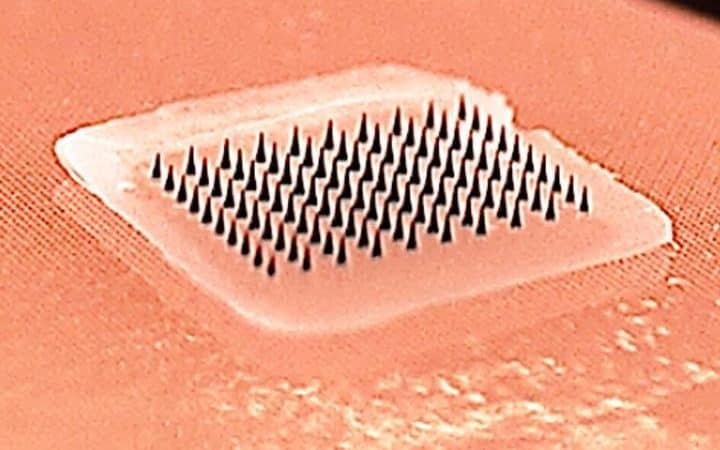 The patch has tiny microneedles which penetrate the skin painlessly and deliver the vaccination in just a few minutes
