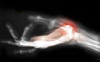 Hand with arthritis