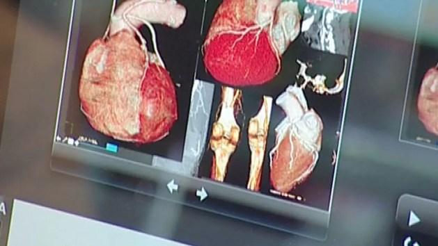 Cona, meeting scientifico sulla cardiogenetica al S.Anna – INTERVISTE