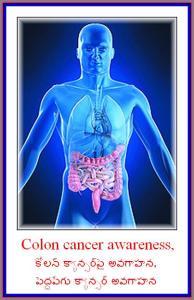 Colon cancer awareness,కోలన్ క్యాన్సర్పై అవగాహన,పెద్దపేగు క్యాన్సర్ అవగాహన