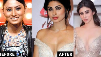 Photo of Bollywood actress plastic surgery