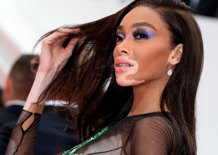 Winnie Harlow primeira embaixadora global de Paul Mitchell
