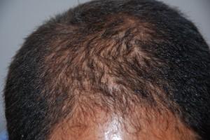 Alopecia superior. Tratamiento con minoxidil - Como cortar el pelo