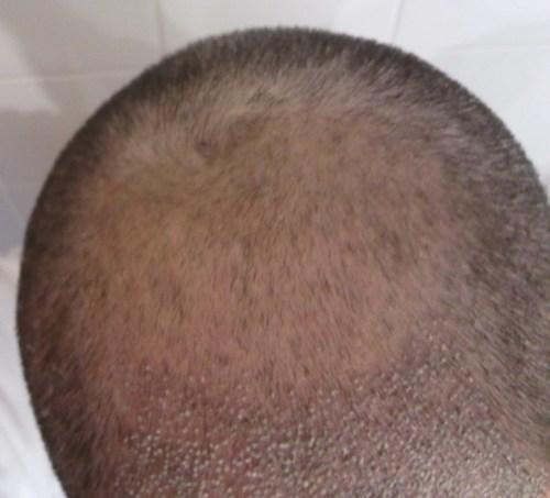 Diferencia del pelo injertado. Costras injerto capilar