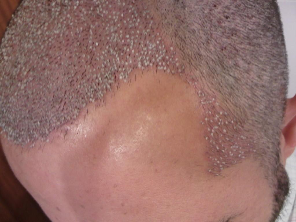 Tres componentes que afectan Dolor de espalda