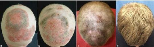 calvicie_alopecia x