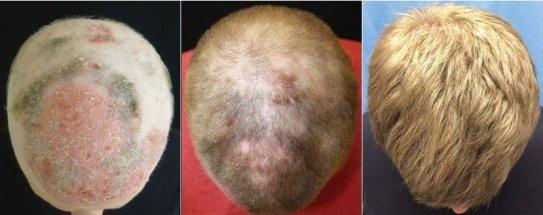 tri alopecia