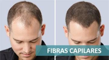 fibras-capilares3
